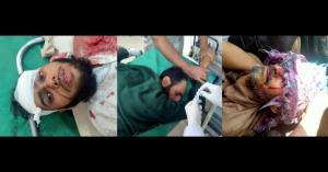 6 civilians injured in Pak firing along LoC in Ku...